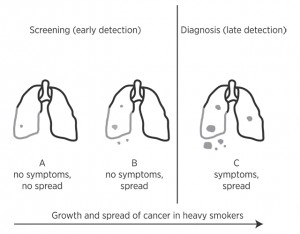 Graphic illustrating the growth of lung cancer
